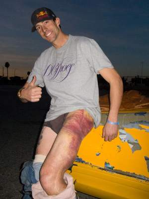 Body battered, package out, thumbs up... classic Pastrana.