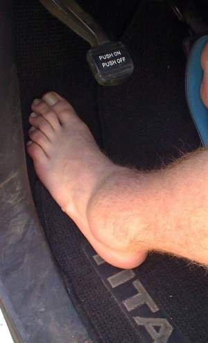 That's Josh Hill's ankle…. Ouch!
