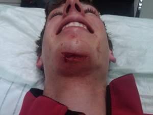 Ben Evans took one on the chin in Europe last weekend.