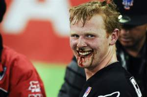 This minor nosebleed didn't slow Trey Canard down. Trey loves Honda so much, he bleeds red!